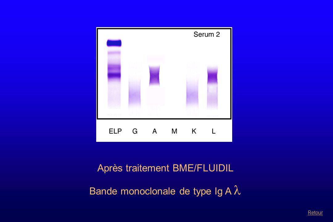 Après traitement BME/FLUIDIL Bande monoclonale de type Ig A Retour