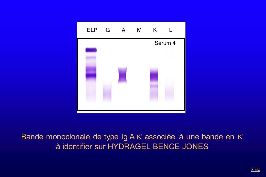Bande monoclonale de type Ig A  associée à une bande en  à identifier sur HYDRAGEL BENCE JONES Suite