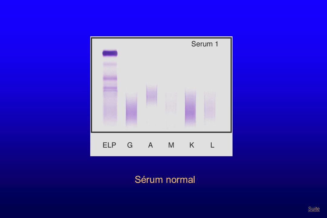 Gammapathie monclonale de type Ig E Retour