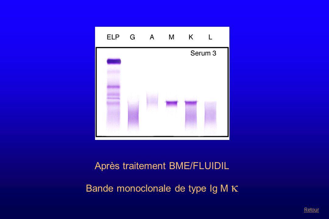 Après traitement BME/FLUIDIL Bande monoclonale de type Ig M  Retour