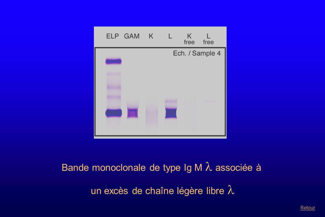Bande monoclonale de type Ig M  associée à un excès de chaîne légère libre Retour