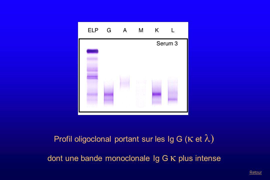 Profil oligoclonal portant sur les Ig G (  et  dont une bande monoclonale Ig G  plus intense Retour