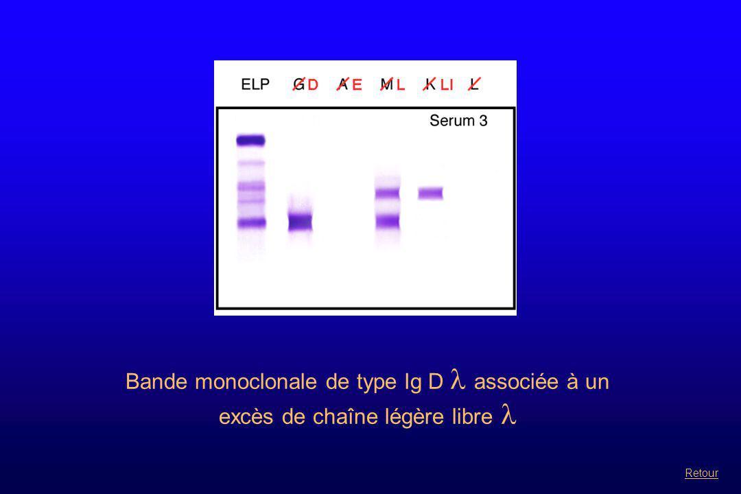 Bande monoclonale de type Ig D  associée à un excès de chaîne légère libre  Retour