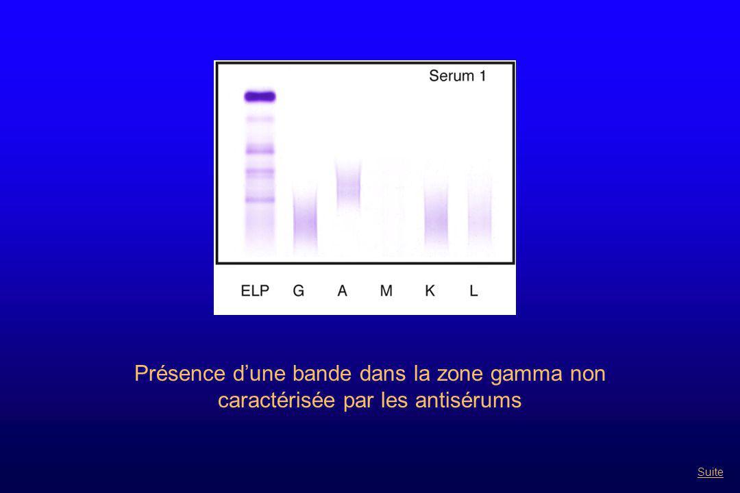 Présence d'une bande dans la zone gamma non caractérisée par les antisérums Suite