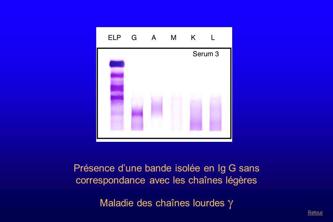 Présence d'une bande isolée en Ig G sans correspondance avec les chaînes légères Maladie des chaînes lourdes  Retour