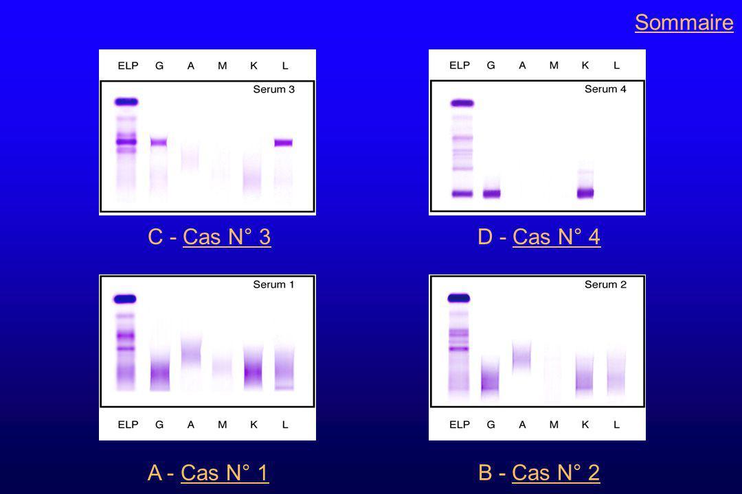 Classification des gammapathies monoclonales Suite