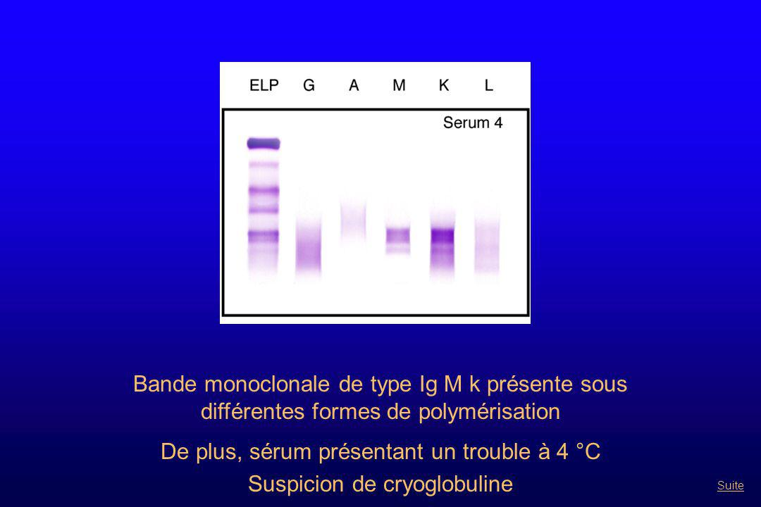 Bande monoclonale de type Ig M k présente sous différentes formes de polymérisation De plus, sérum présentant un trouble à 4 °C Suspicion de cryoglobu
