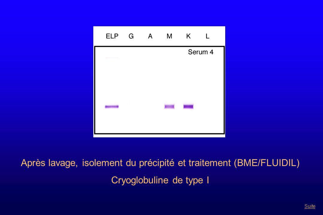 Après lavage, isolement du précipité et traitement (BME/FLUIDIL) Cryoglobuline de type I Suite