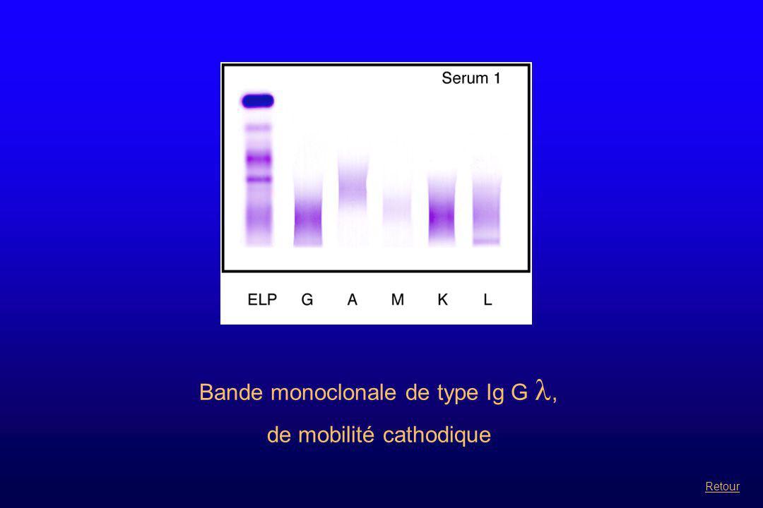 Bande monoclonale de type Ig M associée à une autre bande en à identifier sur gel HYDRAGEL BENCE JONES Suite