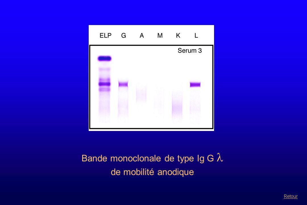 Bande monoclonale de type Ig G  associée à une bande supplémentaire en  à identifier sur HYDRAGEL BENCE JONES Suite