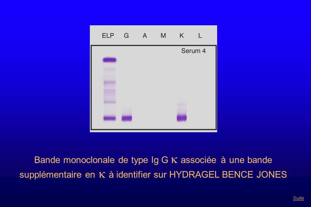 Bande monoclonale de type Ig M k présente sous différentes formes de polymérisation De plus, sérum présentant un trouble à 4 °C Suspicion de cryoglobuline Suite