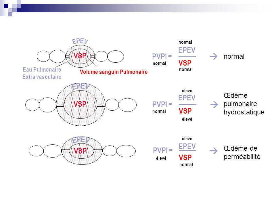 Volume sanguin Pulmonaire PVPI = VSP EPEV normal élevé  PVPI = VSP EPEV élevé normal PVPI = VSP EPEV normal   VSP Eau Pulmonaire Extra vasculaire n