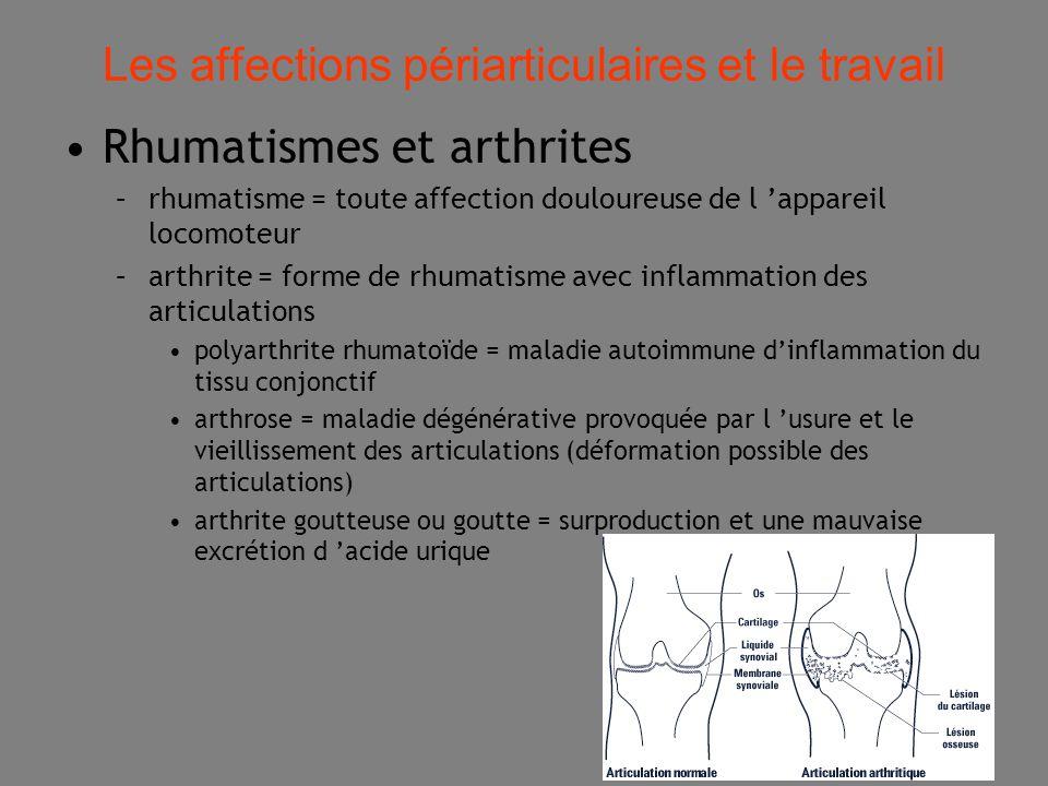 16 Les affections périarticulaires et le travail Rhumatismes et arthrites –rhumatisme = toute affection douloureuse de l 'appareil locomoteur –arthrite = forme de rhumatisme avec inflammation des articulations polyarthrite rhumatoïde = maladie autoimmune d'inflammation du tissu conjonctif arthrose = maladie dégénérative provoquée par l 'usure et le vieillissement des articulations (déformation possible des articulations) arthrite goutteuse ou goutte = surproduction et une mauvaise excrétion d 'acide urique