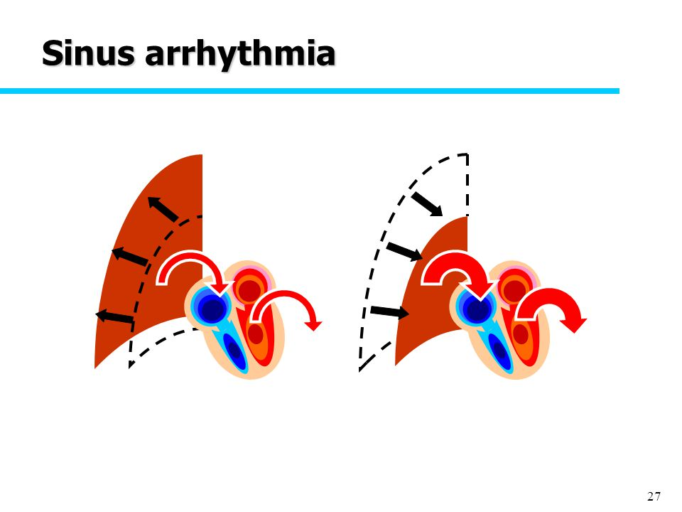 27 Sinus arrhythmia