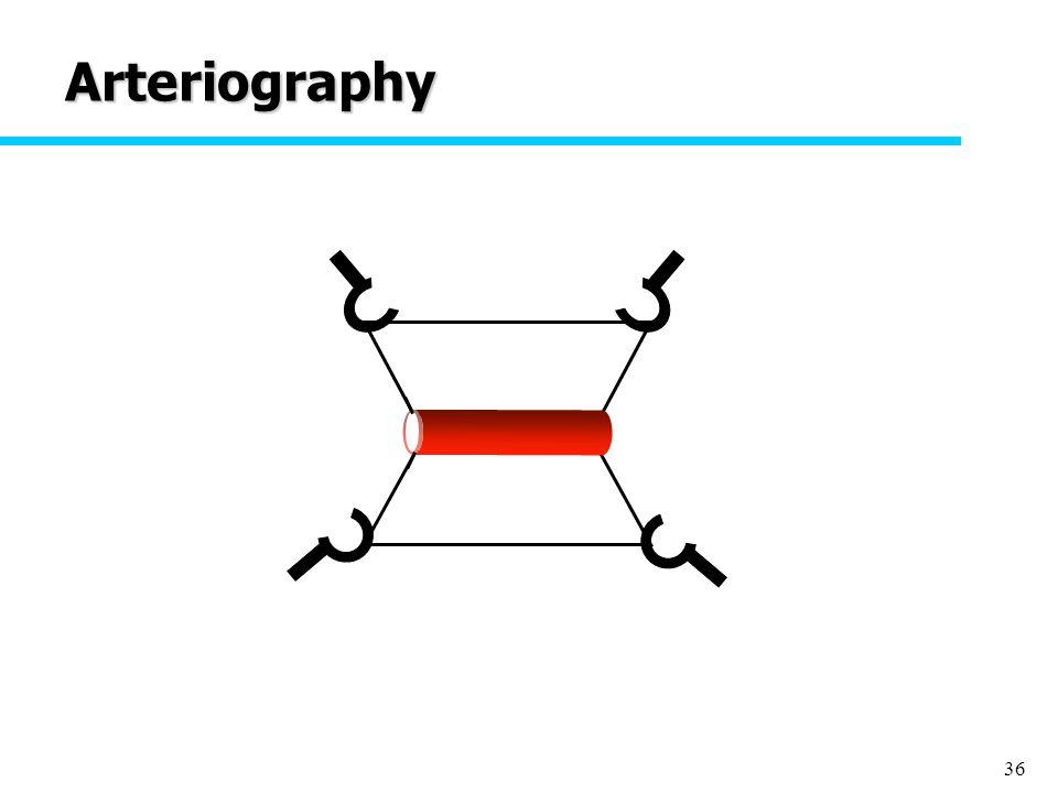 36 Arteriography