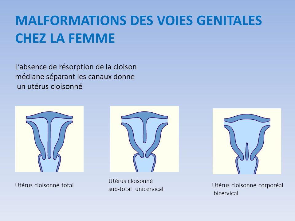 L'absence de résorption de la cloison médiane séparant les canaux donne un utérus cloisonné Utérus cloisonné total Utérus cloisonné sub-total unicervi
