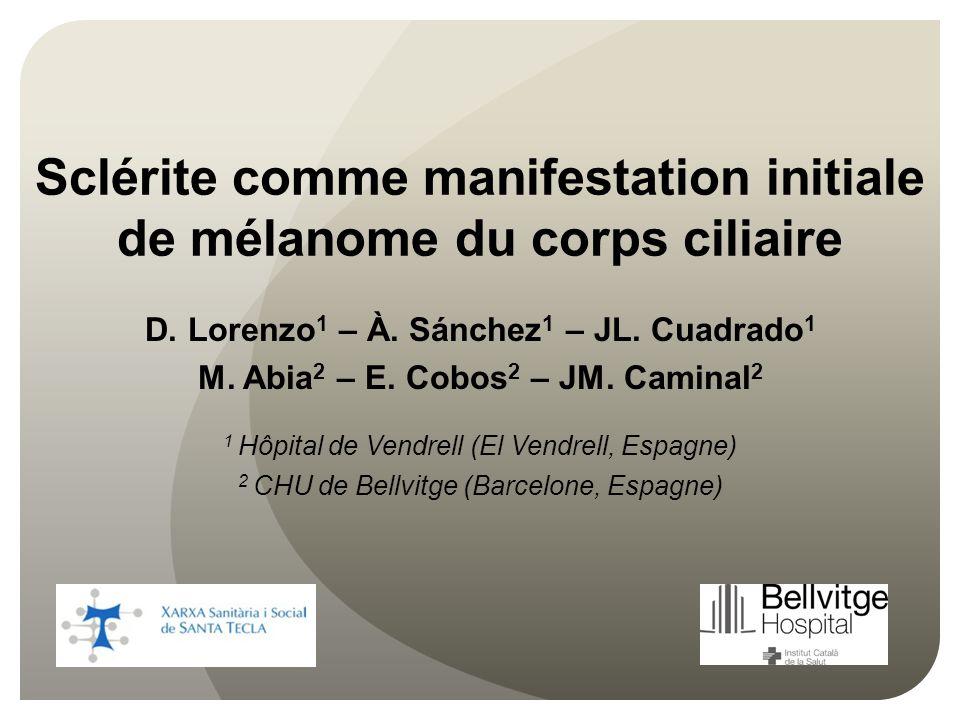 Sclérite comme manifestation initiale de mélanome du corps ciliaire D. Lorenzo 1 – À. Sánchez 1 – JL. Cuadrado 1 M. Abia 2 – E. Cobos 2 – JM. Caminal