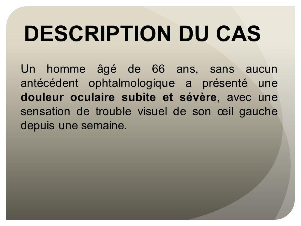 DESCRIPTION DU CAS Un homme âgé de 66 ans, sans aucun antécédent ophtalmologique a présenté une douleur oculaire subite et sévère, avec une sensation