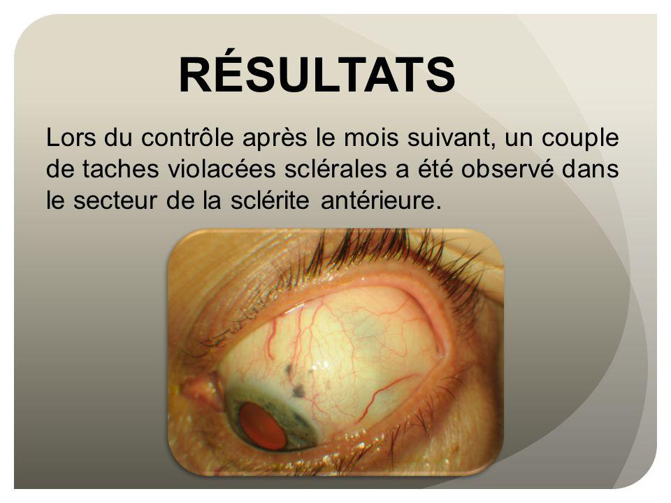 RÉSULTATS Lors du contrôle après le mois suivant, un couple de taches violacées sclérales a été observé dans le secteur de la sclérite antérieure.