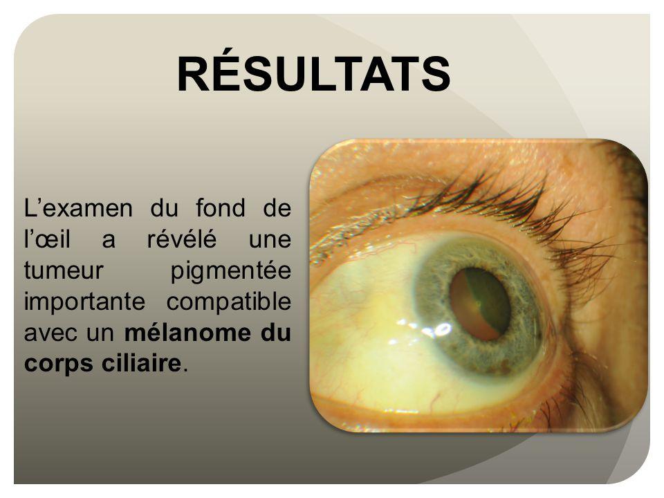 RÉSULTATS L'examen du fond de l'œil a révélé une tumeur pigmentée importante compatible avec un mélanome du corps ciliaire.