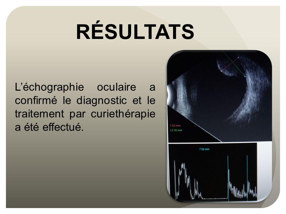 RÉSULTATS L'échographie oculaire a confirmé le diagnostic et le traitement par curiethérapie a été effectué.