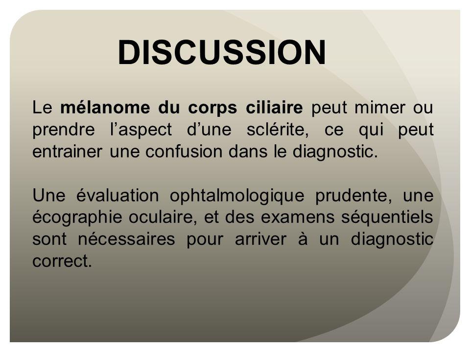 DISCUSSION Moshari et al., on montre que parmi une série de 177 mélanomes non nécrotiques de la choroïde et du corps ciliaire, 4.5% avaient une sclérite isolée ; 40% avaient une épisclérite ; et 12.9% avaient une association sclérite et épisclérite (Am J Ophthalmol 2001 ; 131 (2): 232-236).