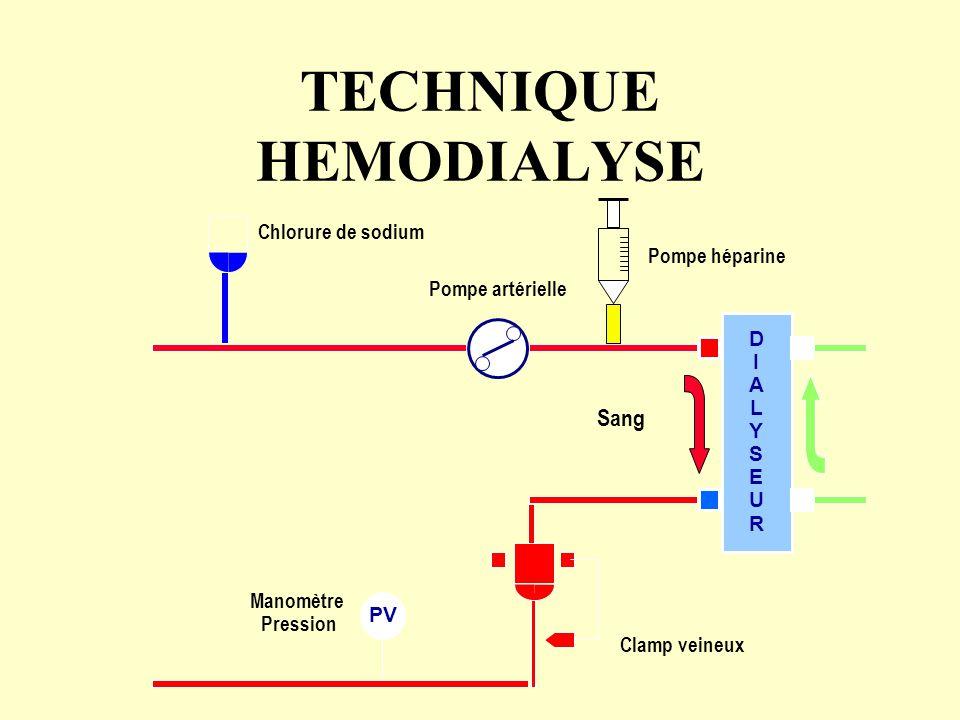 TECHNIQUE HEMODIALYSE PV Pompe artérielle Chlorure de sodium Clamp veineux Manomètre Pression Pompe héparine DIALYSEURDIALYSEUR Sang