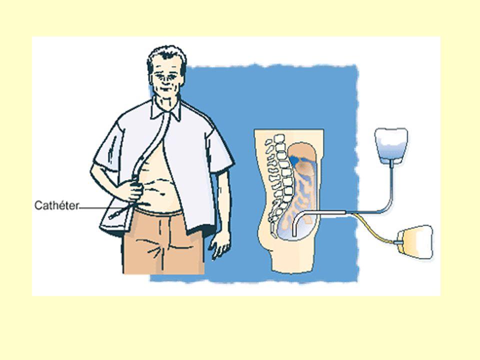 La dialyse péritonéale utilise le péritoine comme surface d'échanges Le liquide de dialyse est introduit dans la cavité abdominale par l'intermédiaire d'un cathéter