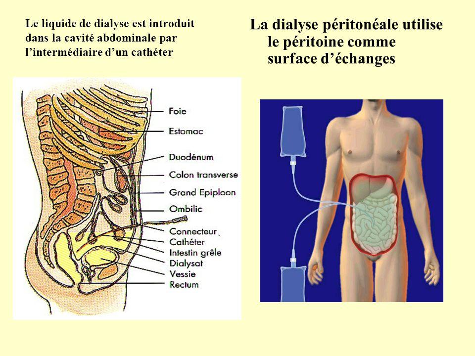 La dialyse péritonéale utilise le péritoine comme surface d'échanges Le liquide de dialyse est introduit dans la cavité abdominale par l'intermédiaire