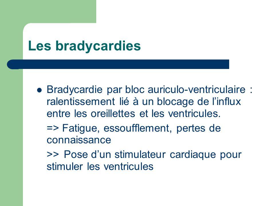 Les bradycardies Bradycardie par bloc auriculo-ventriculaire : ralentissement lié à un blocage de l'influx entre les oreillettes et les ventricules.