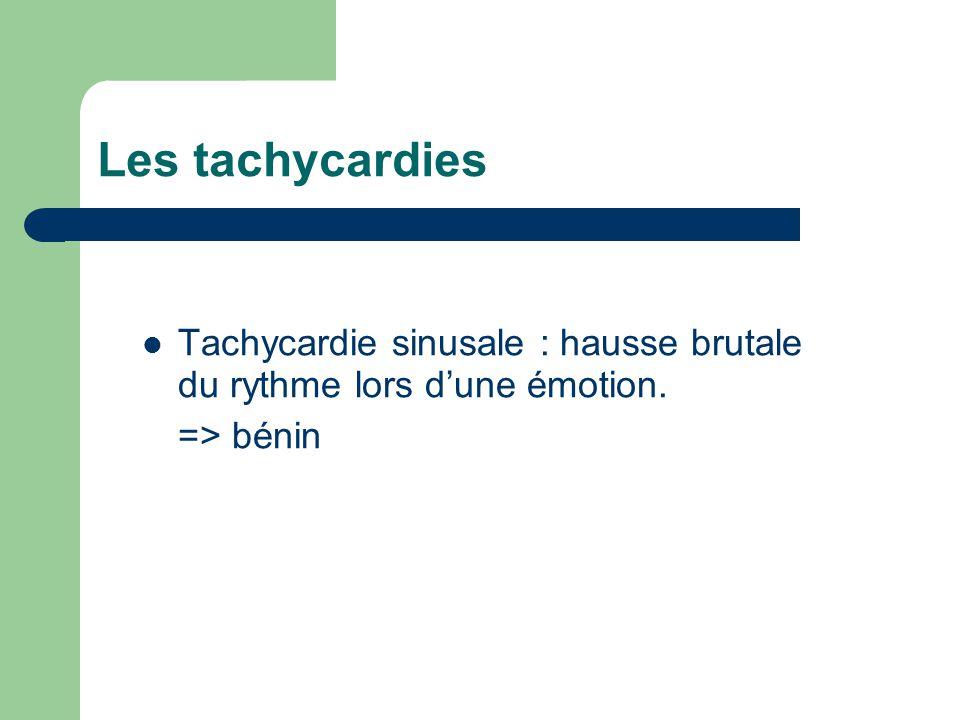 Les tachycardies Tachycardie sinusale : hausse brutale du rythme lors d'une émotion. => bénin