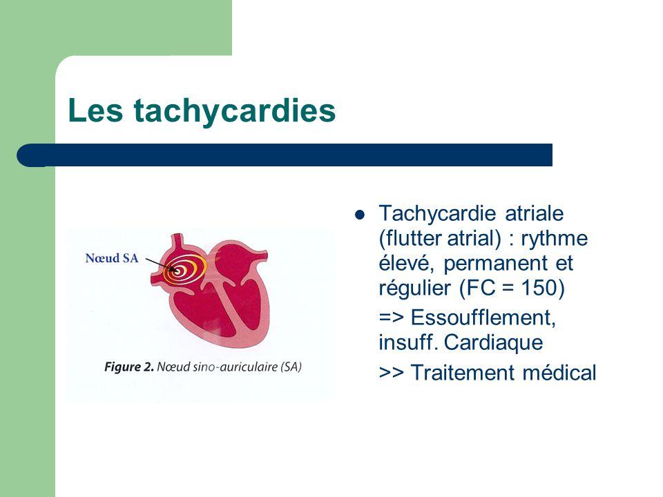 Les tachycardies Tachycardie atriale (flutter atrial) : rythme élevé, permanent et régulier (FC = 150) => Essoufflement, insuff.