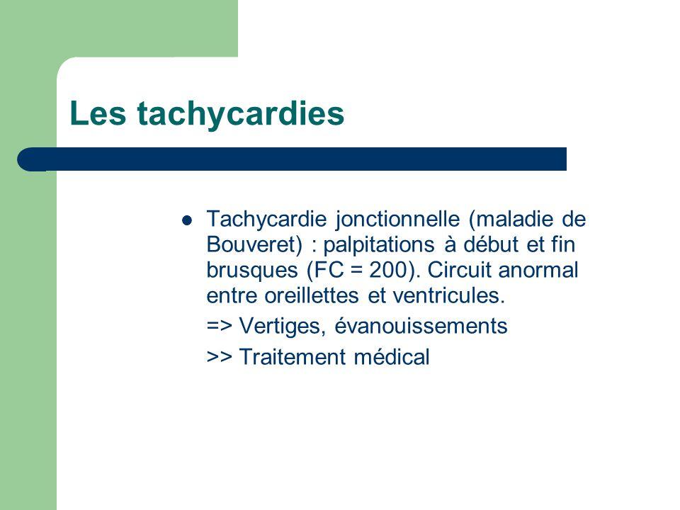 Les tachycardies Tachycardie jonctionnelle (maladie de Bouveret) : palpitations à début et fin brusques (FC = 200).