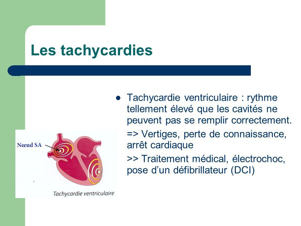 Les tachycardies Tachycardie ventriculaire : rythme tellement élevé que les cavités ne peuvent pas se remplir correctement.