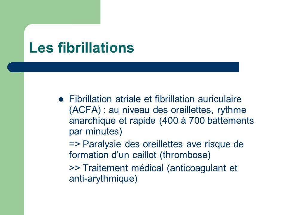 Les fibrillations Fibrillation atriale et fibrillation auriculaire (ACFA) : au niveau des oreillettes, rythme anarchique et rapide (400 à 700 battements par minutes) => Paralysie des oreillettes ave risque de formation d'un caillot (thrombose) >> Traitement médical (anticoagulant et anti-arythmique)