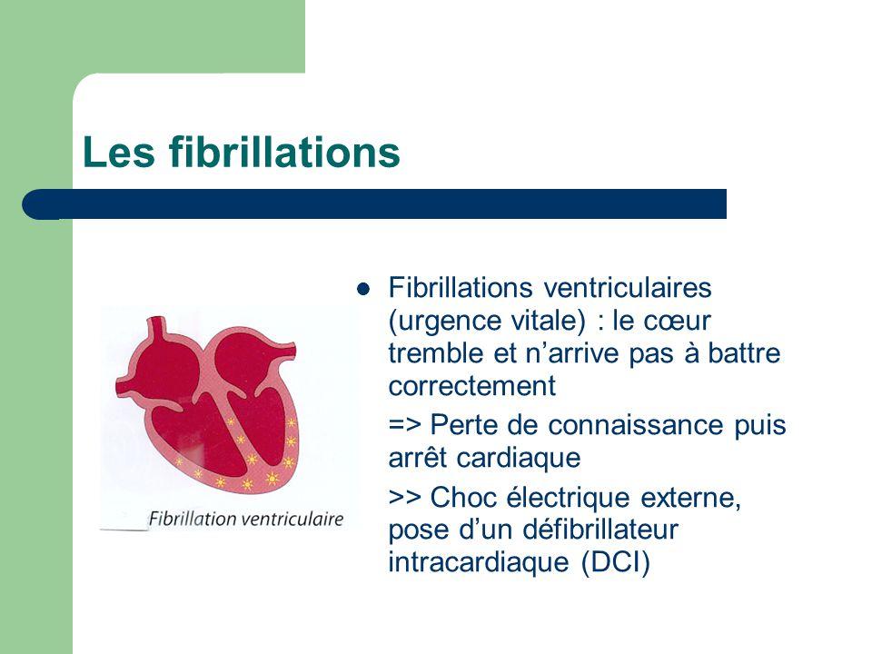 Les fibrillations Fibrillations ventriculaires (urgence vitale) : le cœur tremble et n'arrive pas à battre correctement => Perte de connaissance puis arrêt cardiaque >> Choc électrique externe, pose d'un défibrillateur intracardiaque (DCI)
