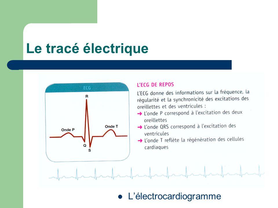 Le tracé électrique L'électrocardiogramme