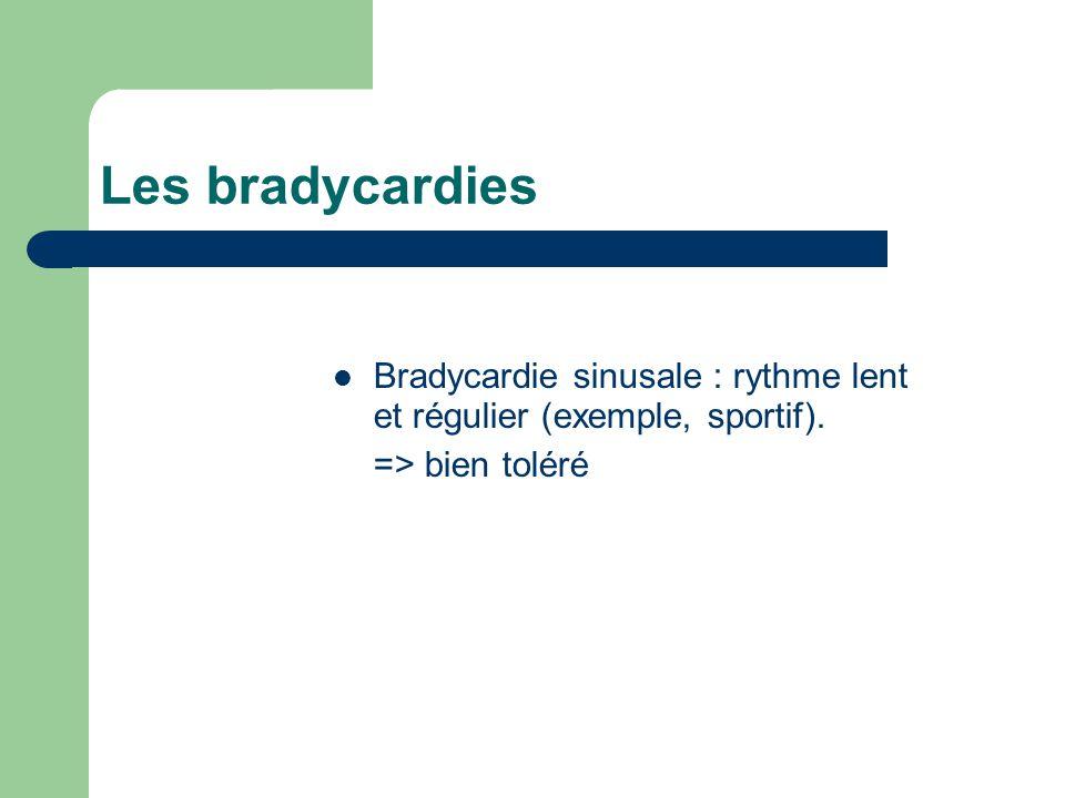 Les bradycardies Bradycardie sinusale : rythme lent et régulier (exemple, sportif). => bien toléré