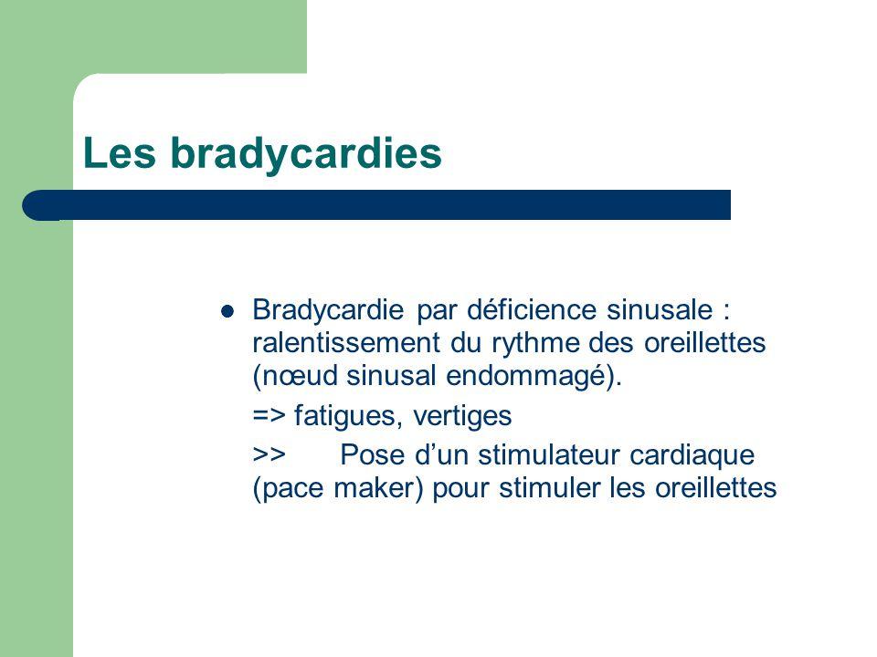 Les bradycardies Bradycardie par déficience sinusale : ralentissement du rythme des oreillettes (nœud sinusal endommagé).