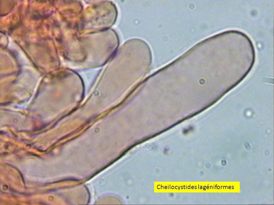 Cheilocystides lagéniformes