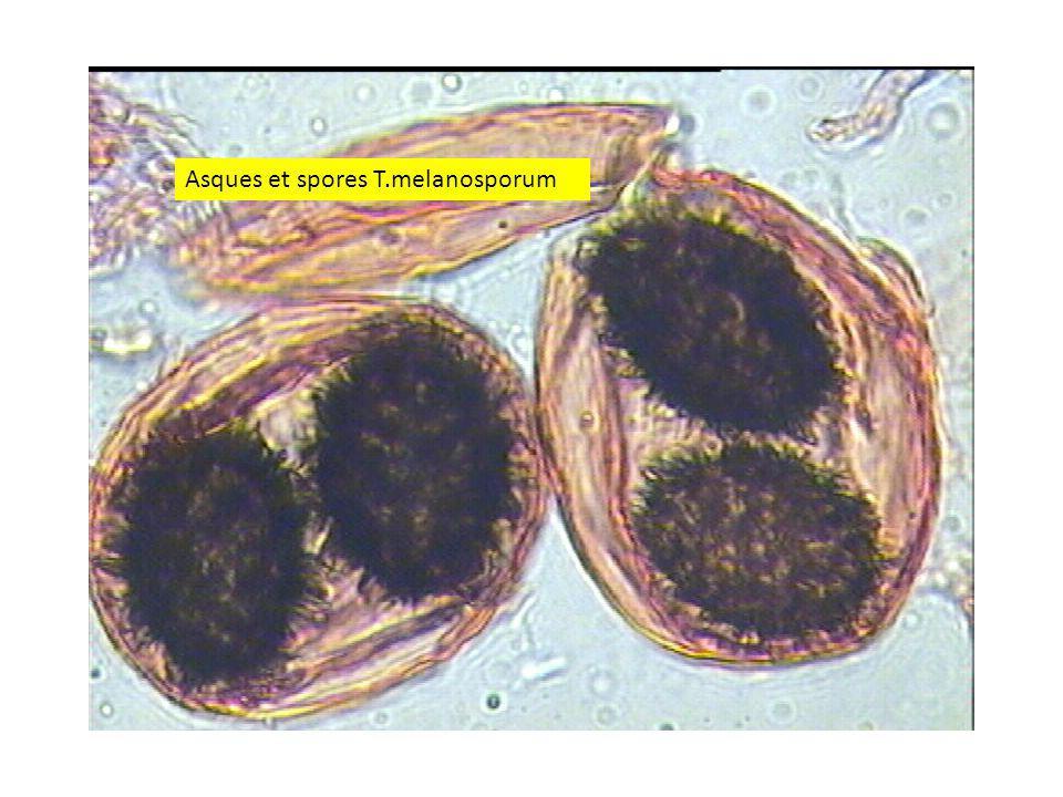Asques et spores T.melanosporum