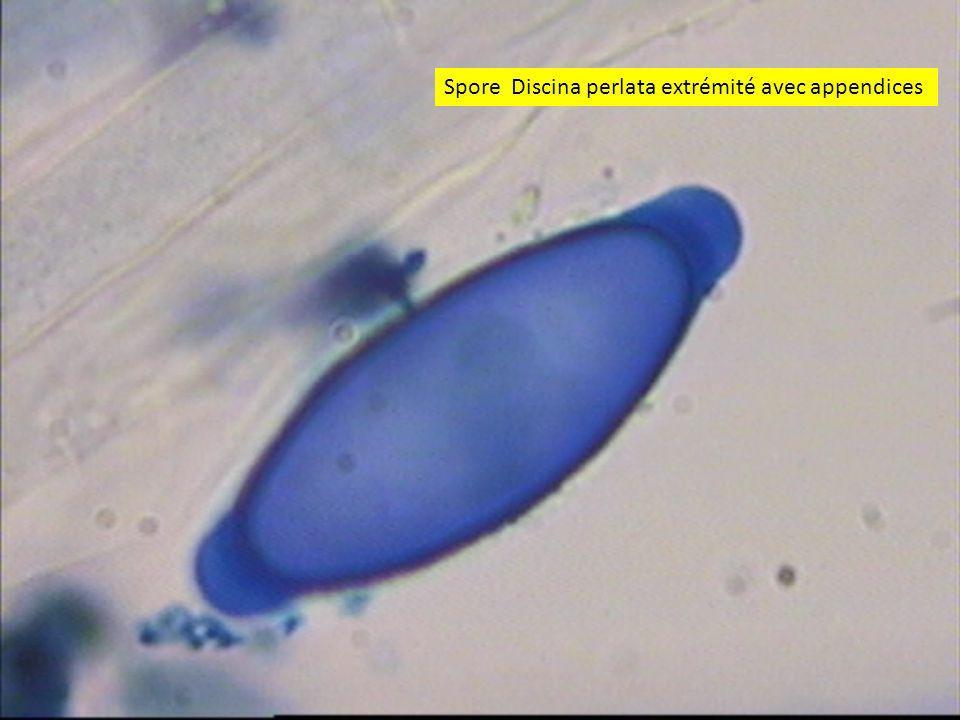 Spore Discina perlata extrémité avec appendices