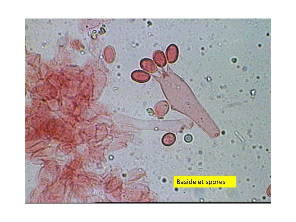 Baside et spores