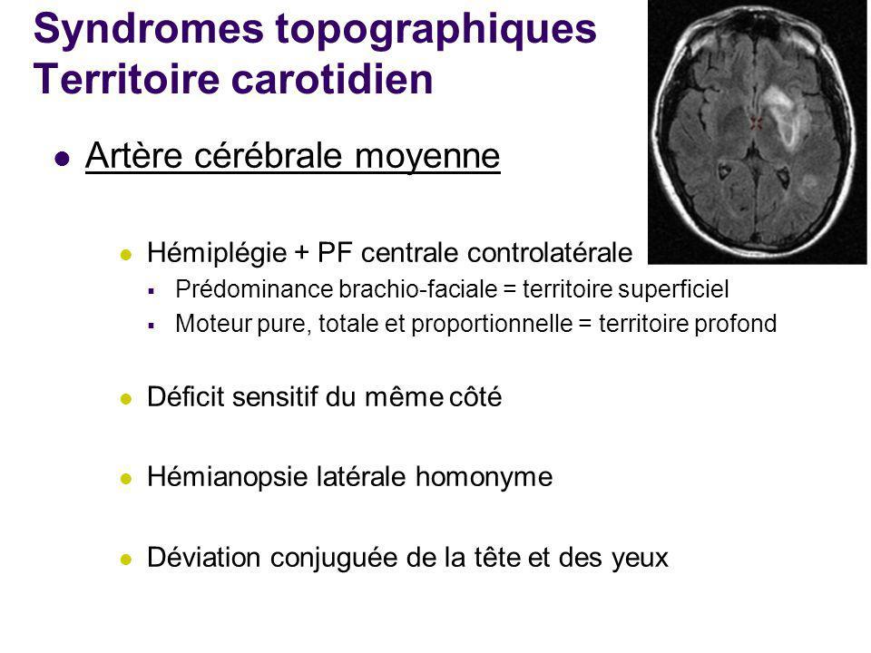 Syndromes topographiques Territoire carotidien Artère cérébrale moyenne Hémiplégie + PF centrale controlatérale  Prédominance brachio-faciale = terri