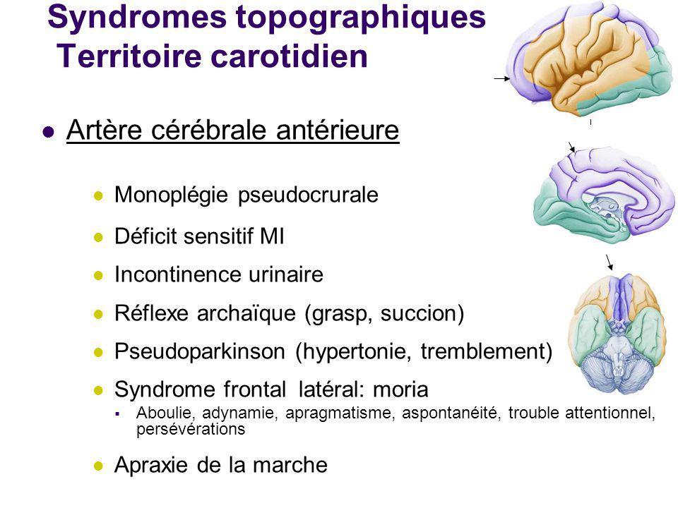 Syndromes topographiques Territoire carotidien Artère cérébrale antérieure Monoplégie pseudocrurale Déficit sensitif MI Incontinence urinaire Réflexe