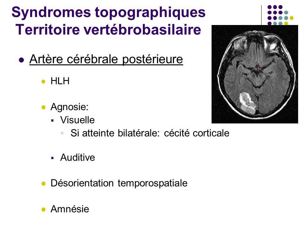 Syndromes topographiques Territoire vertébrobasilaire Artère cérébrale postérieure HLH Agnosie:  Visuelle  Si atteinte bilatérale: cécité corticale