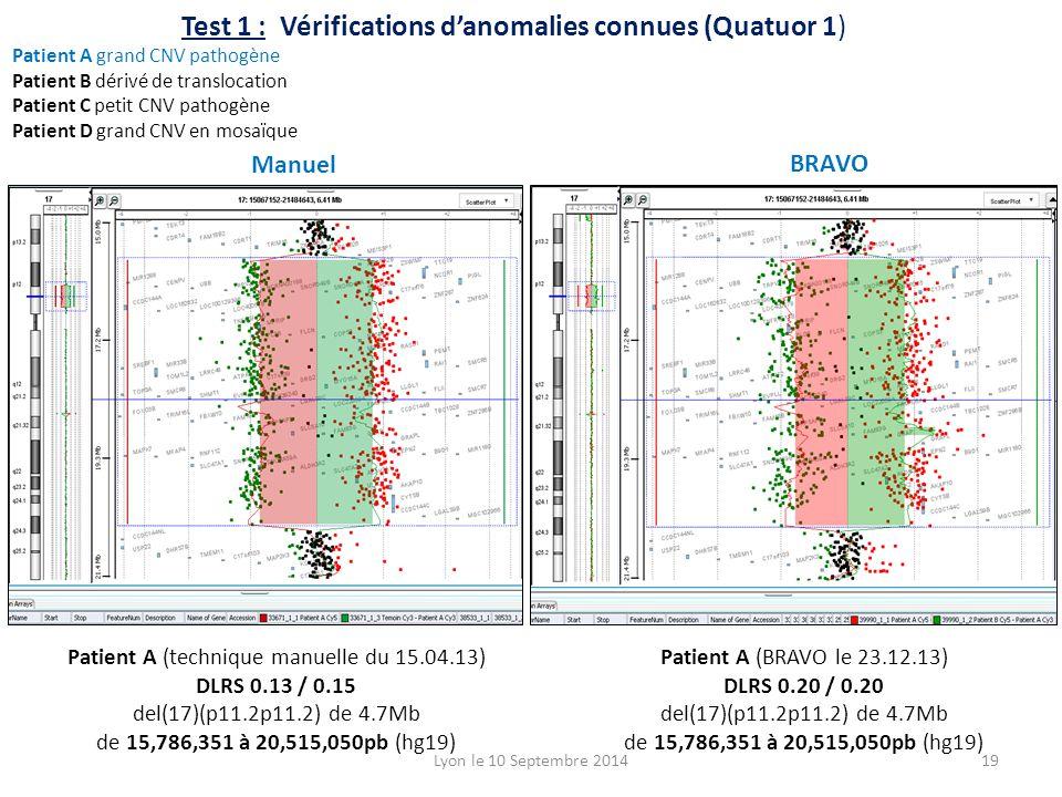 Patient A (technique manuelle du 15.04.13) DLRS 0.13 / 0.15 del(17)(p11.2p11.2) de 4.7Mb de 15,786,351 à 20,515,050pb (hg19) Patient A (BRAVO le 23.12.13) DLRS 0.20 / 0.20 del(17)(p11.2p11.2) de 4.7Mb de 15,786,351 à 20,515,050pb (hg19) Test 1 : Vérifications d'anomalies connues (Quatuor 1) Patient A grand CNV pathogène Patient B dérivé de translocation Patient C petit CNV pathogène Patient D grand CNV en mosaïque Lyon le 10 Septembre 201419 Manuel BRAVO