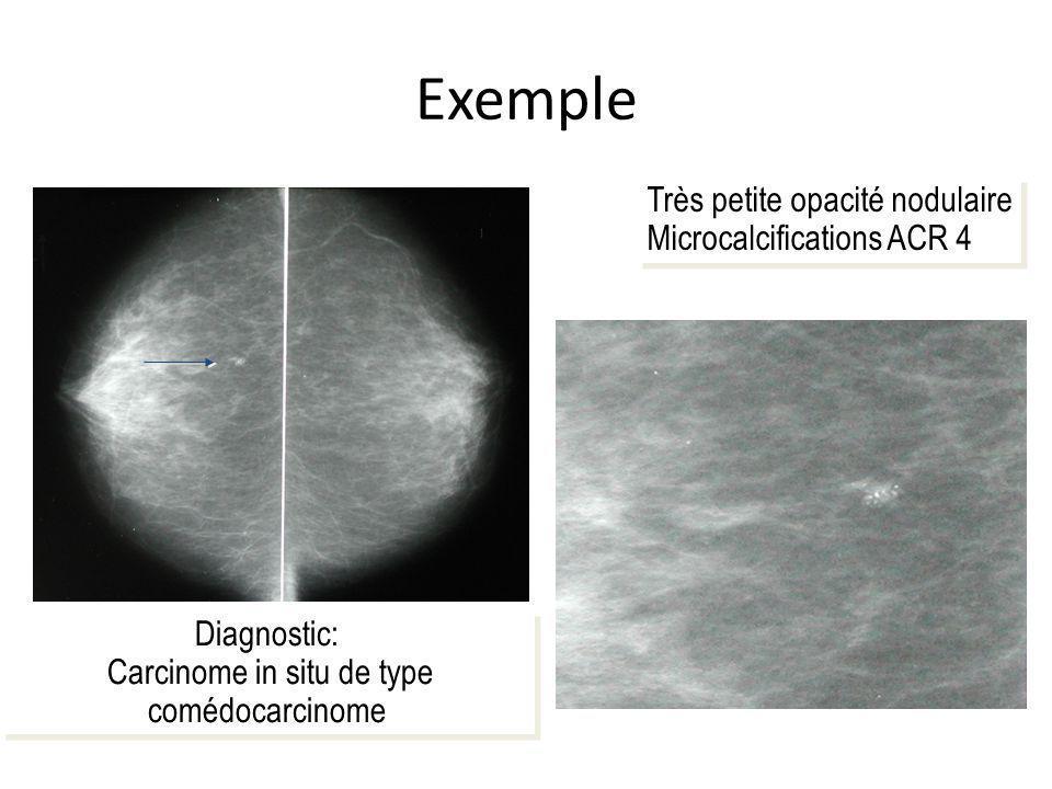 Exemple Très petite opacité nodulaire Microcalcifications ACR 4 Très petite opacité nodulaire Microcalcifications ACR 4 Diagnostic: Carcinome in situ de type comédocarcinome Diagnostic: Carcinome in situ de type comédocarcinome