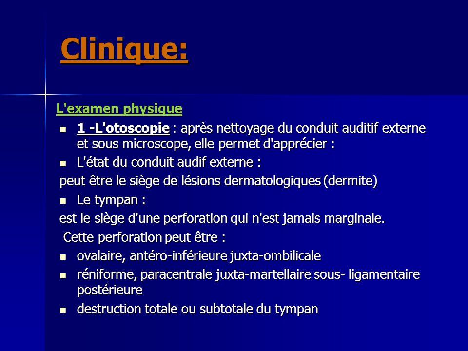 L'examen physique 1 -L'otoscopie : après nettoyage du conduit auditif externe et sous microscope, elle permet d'apprécier : 1 -L'otoscopie : après net