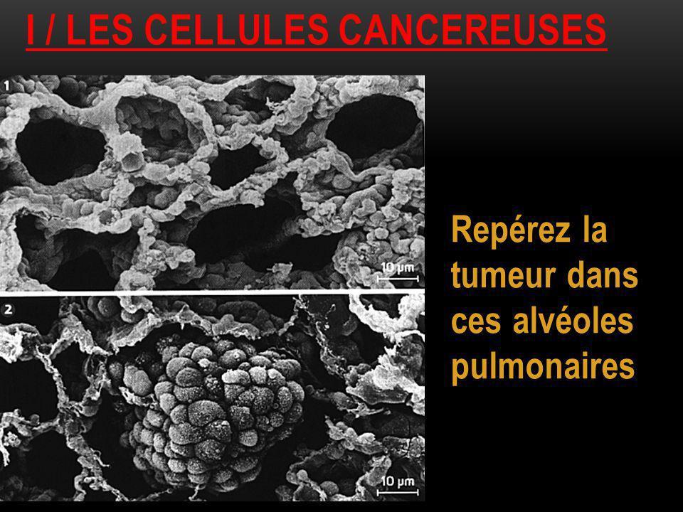 I / LES CELLULES CANCEREUSES Repérez la tumeur dans ces alvéoles pulmonaires